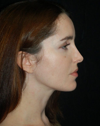 Nose Surgery - Rhinoplasty after 1253154