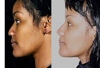35-44 year old woman treated with African American Rhinoplasty 1690768