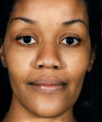 35-44 year old woman treated with African American Rhinoplasty before 1690768