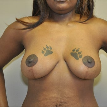 18-24 year old woman treated with Breast Reduction after 1696765