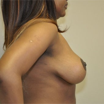 18-24 year old woman treated with Breast Reduction 1696765