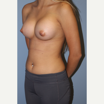 18-24 year old woman treated with Breast Augmentation after 3548977