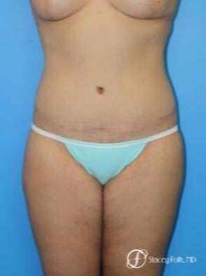 35-44 year old woman treated with Tummy Tuck after 2184782