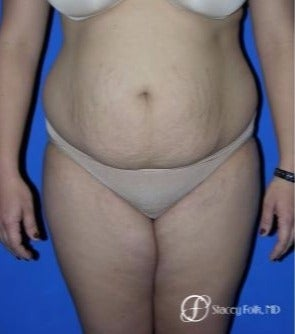 35-44 year old woman treated with Tummy Tuck before 2184782