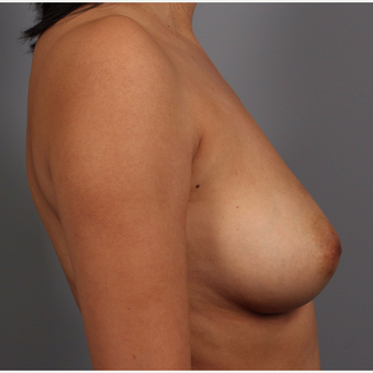 35-44 year old woman treated with Breast Reconstruction before 3657779