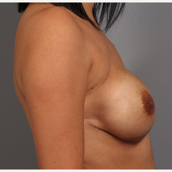 35-44 year old woman treated with Breast Reconstruction after 3657779