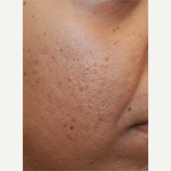 35-44 year old woman treated with Silikon 1000 for acne scarring.