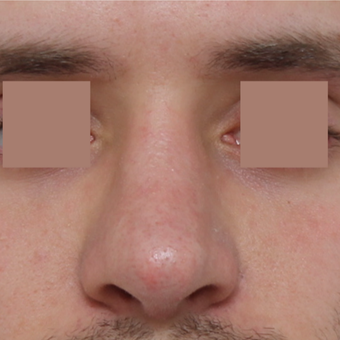 25-34 year old man treated with Revision Rhinoplasty after 3584839