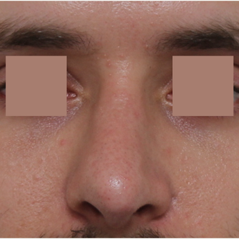 25-34 year old man treated with Revision Rhinoplasty before 3584839