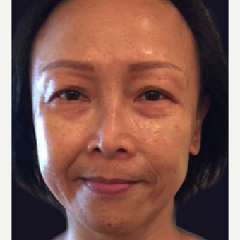 45-54 year old woman treated with Injectable Fillers after 3243240