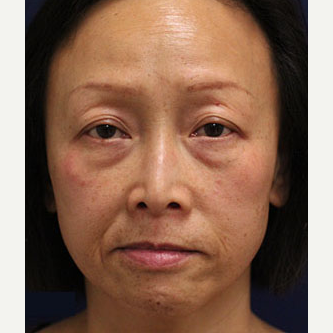 45-54 year old woman treated with Injectable Fillers before 3243240