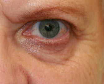 Laser Lower Eyelid Skin before 1174480