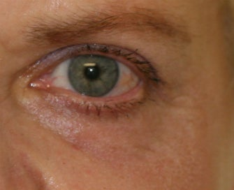 Laser Lower Eyelid Skin after 1174480