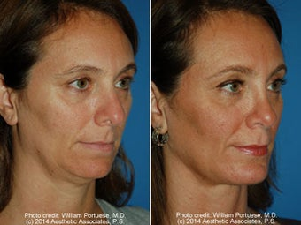 Neck Liposuction before 1389718