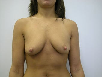 Breast Lift before 572507