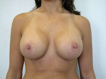 Breast Lift after 572507