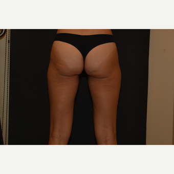 45-54 year old woman treated with CoolSculpting before 3815733