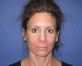 42 Year Old Seeks Minifacelift and Laser Resurfacing before 1475223