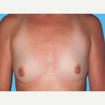 Breast Augmentation before 3732626