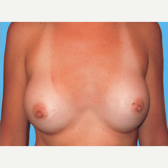 Breast Augmentation after 3732626