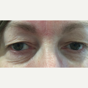 55-64 year old woman treated with Eyelid Surgery before 3493705