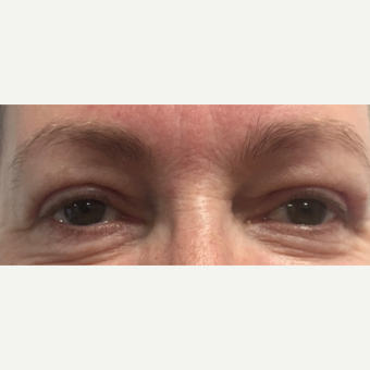 55-64 year old woman treated with Eyelid Surgery after 3493705
