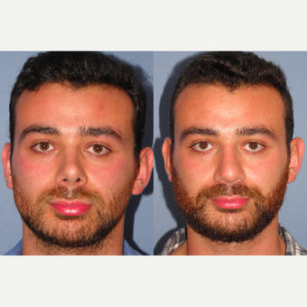 25-34 year old man treated with Revision Rhinoplasty before 3522781
