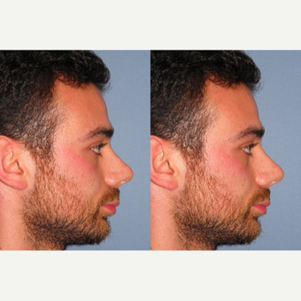 25-34 year old man treated with Revision Rhinoplasty after 3522781