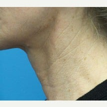 46 year old woman treated with Ultherapy after 2637611