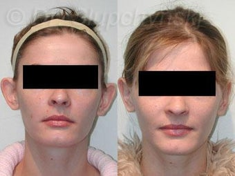 Otoplasty Plastic Surgery before 1117228
