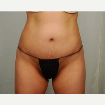 35-44 year old woman treated with Tummy Tuck after 3026105
