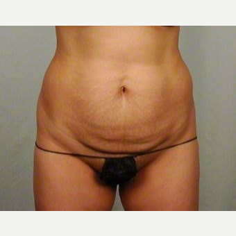35-44 year old woman treated with Tummy Tuck before 3026105