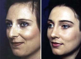 Rhinoplasty before 92269