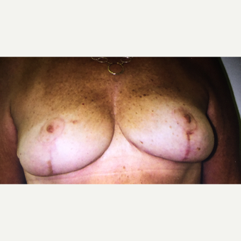 45-54 year old woman treated with Breast Lift after 3366396