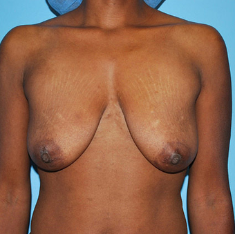 Breast Lift before 944870