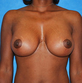 Breast Lift after 944870