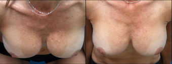 35-44 year old woman treated with Fat Transfer after 3365063