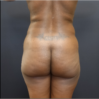 35-44 year old woman treated with Butt Augmentation before 3200912