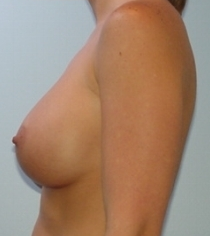 Transaxillary breast augmentation (BEWISE) 235354