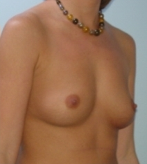 Transaxillary breast augmentation (BEWISE) before 235354