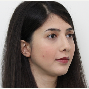 25-34 year old woman treated with Rhinoplasty after 3405679