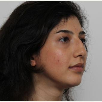 25-34 year old woman treated with Rhinoplasty before 3405679