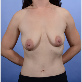 Breast Lift with Implants before 3052215