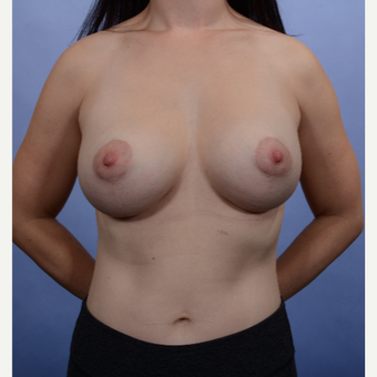 Breast Lift with Implants after 3052215