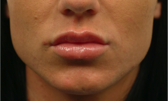 Lip Augmentation after 1456330
