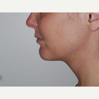 Young woman treated with Kybella, nonsurgical neck fat reduction after 3001797