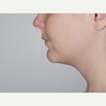 Young woman treated with Kybella, nonsurgical neck fat reduction before 3001797