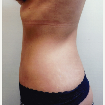 35-44 year old woman treated with Liposuction after 3481107