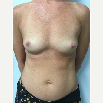 40 year old woman treated with Gummy Bear Style Silicone Gel Breast Implants before 3082400