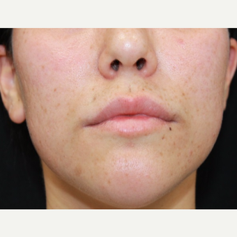 27 year old woman treated with Juvederm to lips and nasolabial folds before 3059597